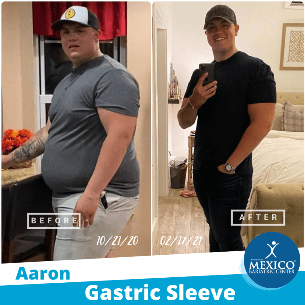 Aaron G - Before and After 2021