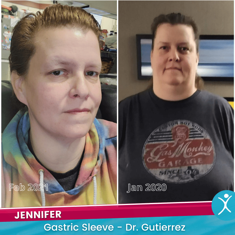 Jennifer R Before and After Picture - gastric sleeve - Dr G